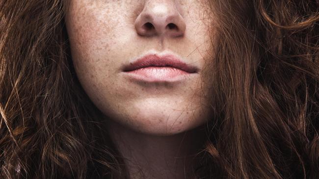 Причины пигментации на лице у женщин