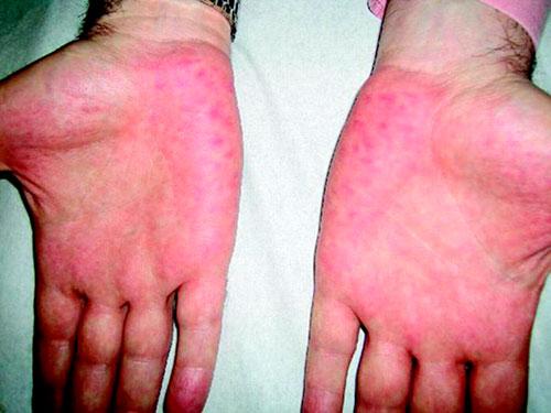Болит печень: признаки, симптомы