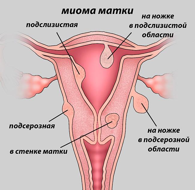 Миома матки, как распознать: симптомы, признаки