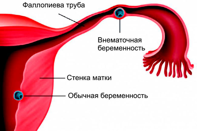 Боль при внематочной беременности