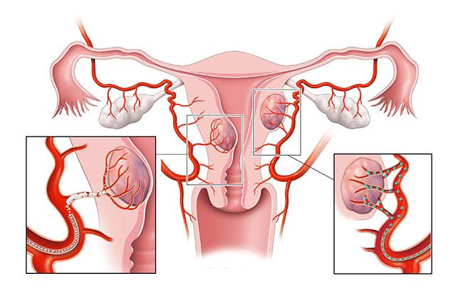фибромиома матки симптомы и признаки
