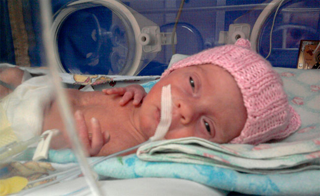 Недоношенный ребенок 7 месяцев: последствия